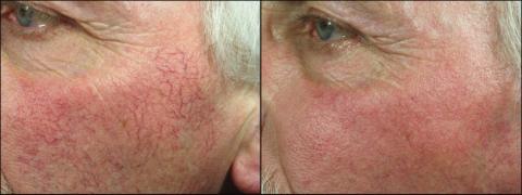 Leczenie zmian naczyniowych, rumienia Laser likwiduje zmiany naczyniowe, naczyniaki rubinowe (hemangioma), rumień.